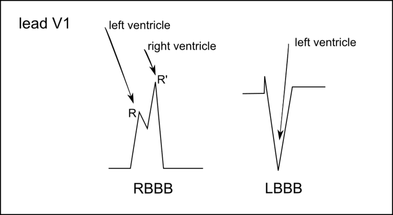 RBBB and LBBB