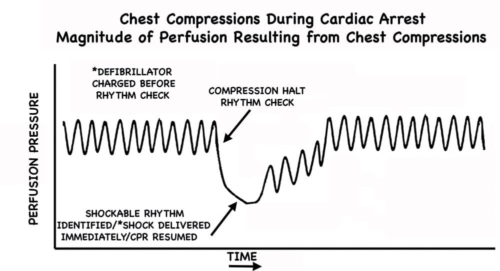 CPR WITH PRE-CHARGE FINAL