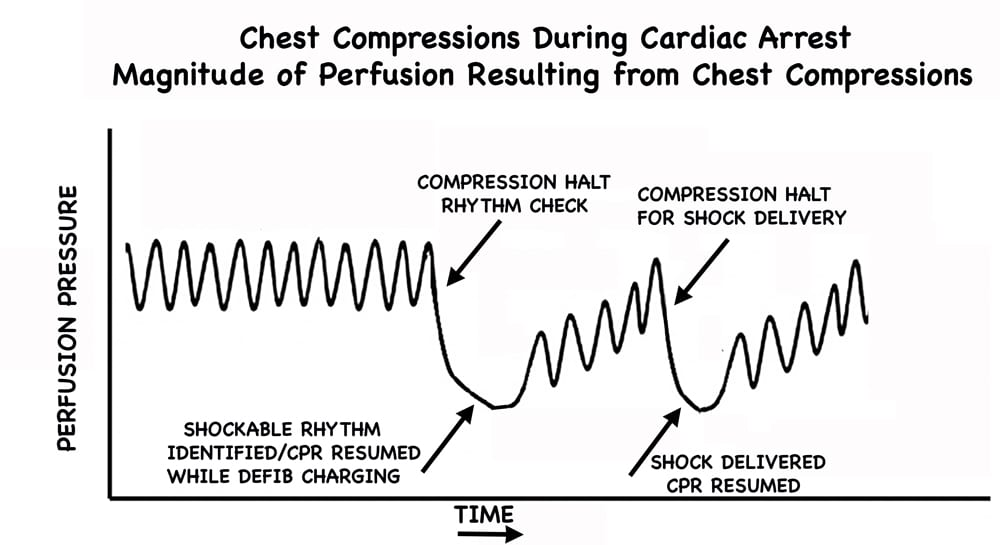 CPR WITHOUT PRE-CHARGE